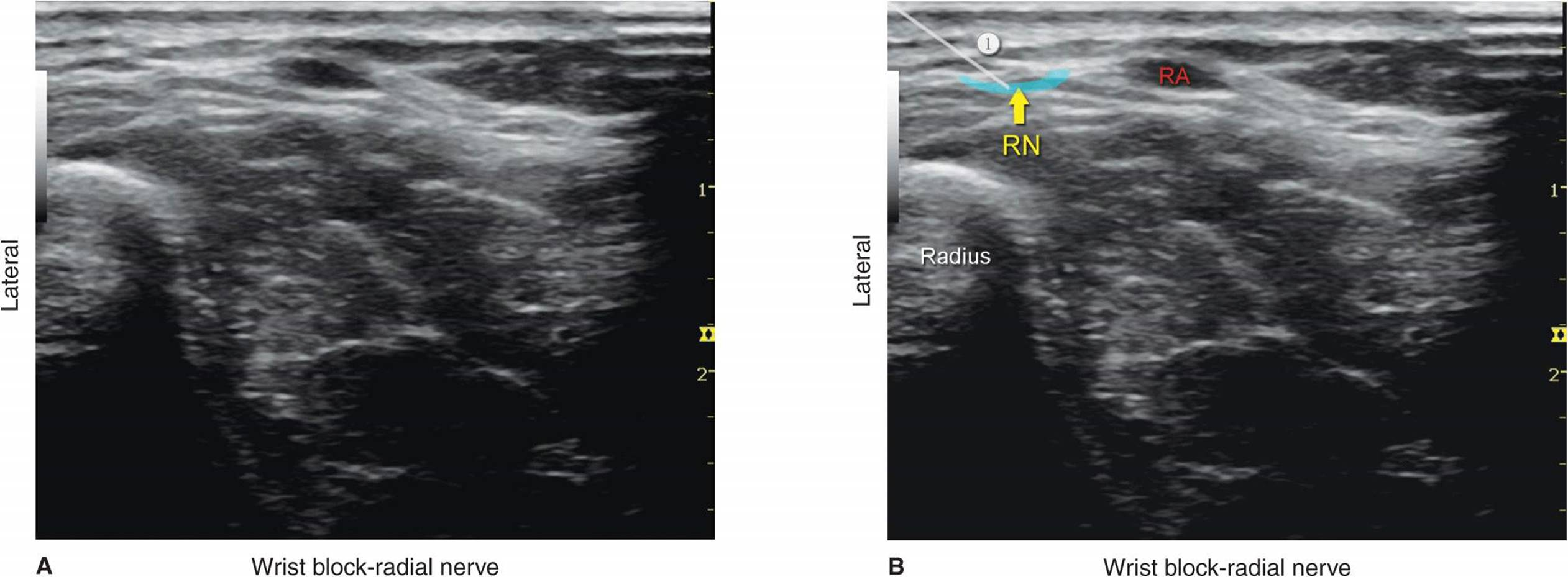 ultrasound guided radial nerve block